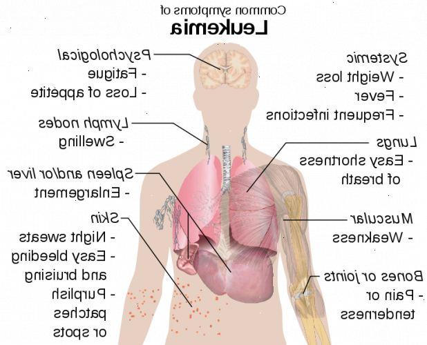 kronisk leukemi behandling