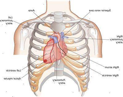 hjerteinnfarkt kvinner